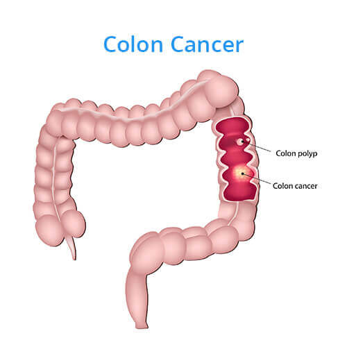 an essay on colon cancer Colon cancer what is the disease colon and rectal cancer develop in the digestive tract, which is also called the gastrointestinal, or gi, tract the.